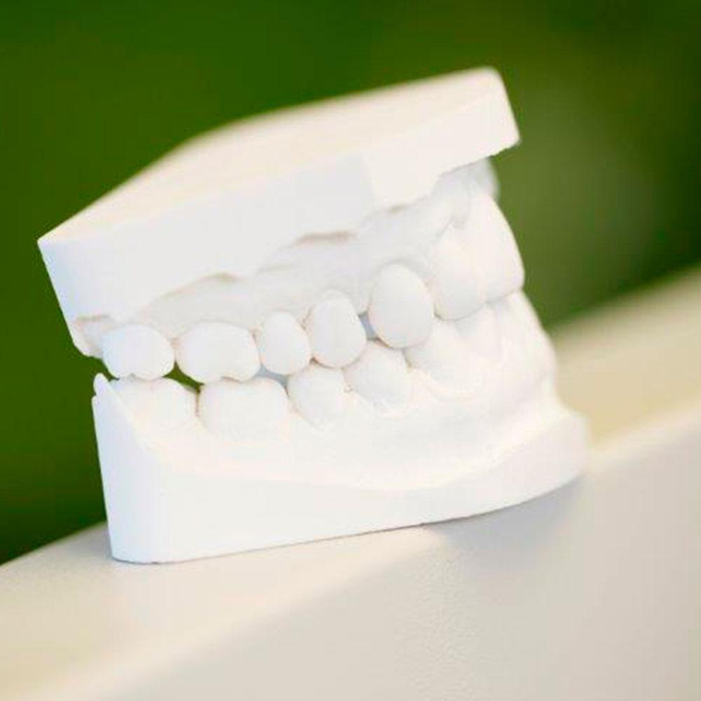 tand6-ny